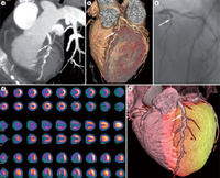 Multimodality Imaging in Cardiology