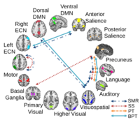 Neuroimaging and fMRI data analysis - clinical and research applications